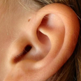 A woman with a Preauricular Sinus